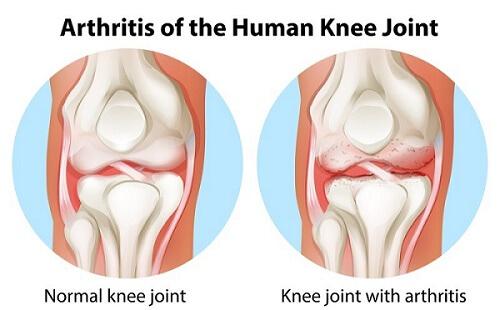 Prolotherapy for Osteo Arthritis