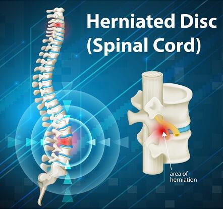 Disc Herniation spine
